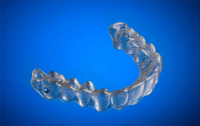 3d-printed-braces-amos-dudley-6