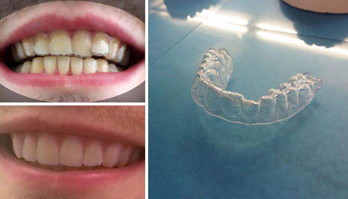 College Student Makes His Own DIY Braces For $60, Saves Thousands Of Dollars