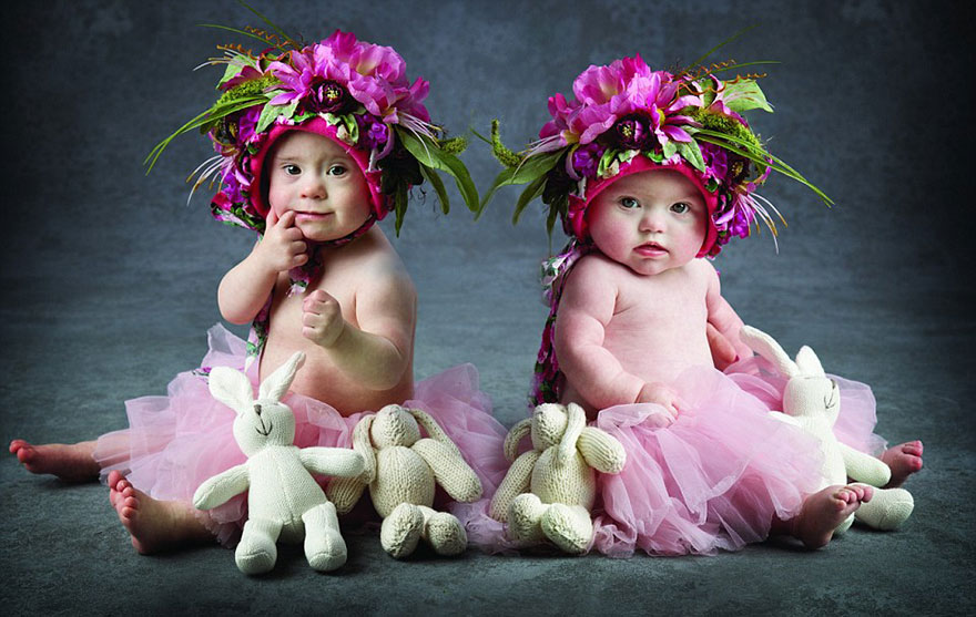 babies-downs-syndrome-awareness-charity-calendar-13