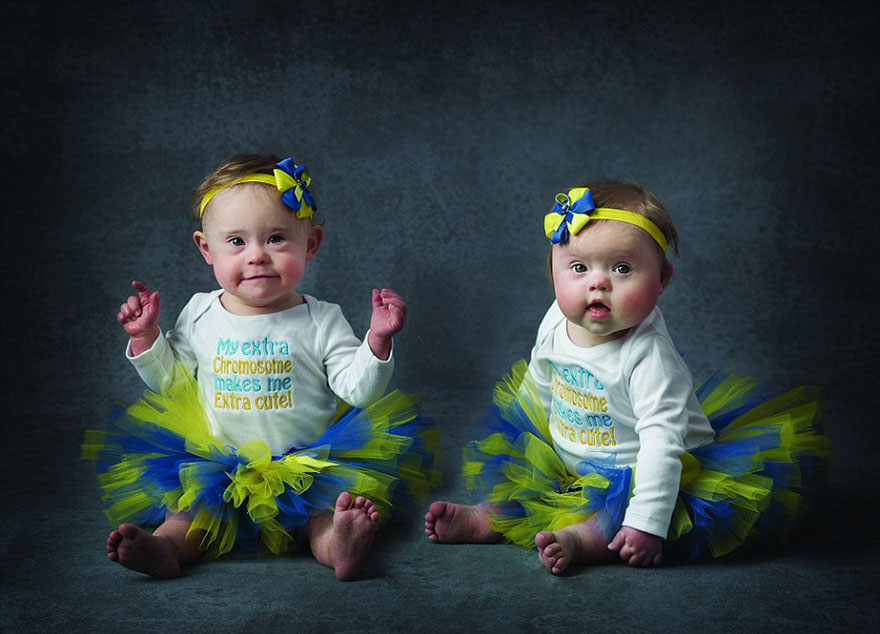 babies-downs-syndrome-awareness-charity-calendar-6