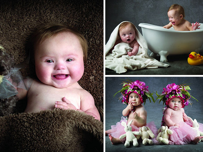 Babies with Down's Syndrome Pose For Adorable Charity Photoshoot