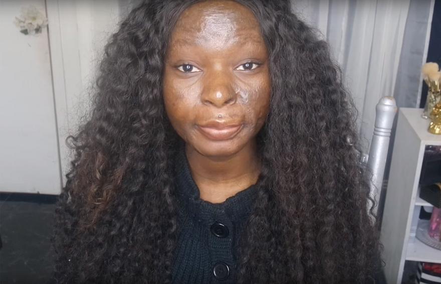 burn-victim-power-of-make-up-transformation-shalom-nchom-blac-7