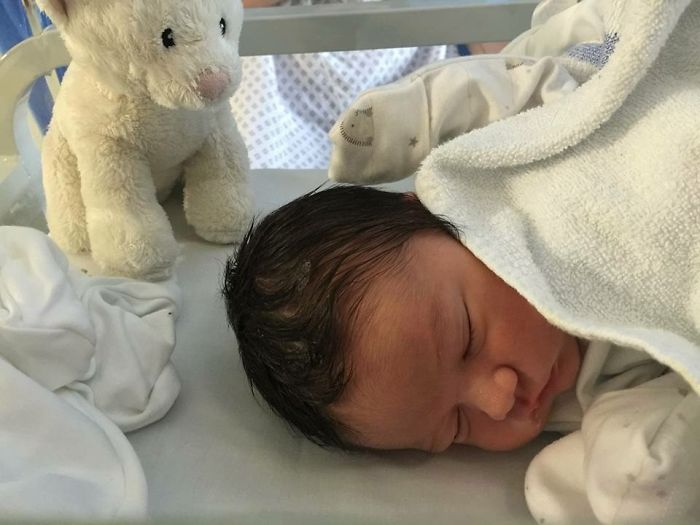 My Son Was Also Born With A Lot Of Hair