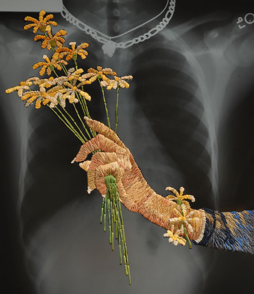 Embroidered X-ray Film By Matthew Cox
