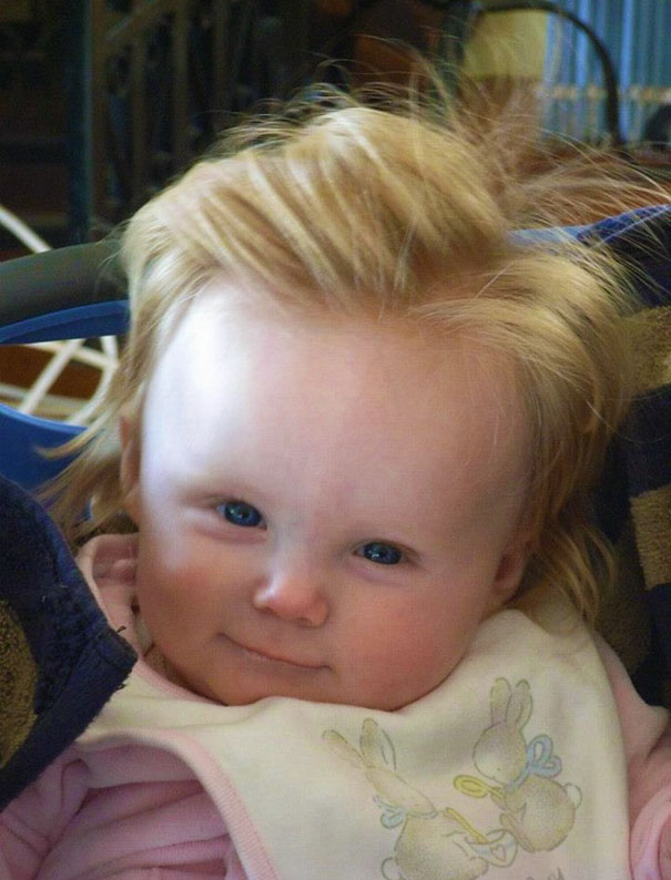 My Friends Baby Was Born With Conan Hair!