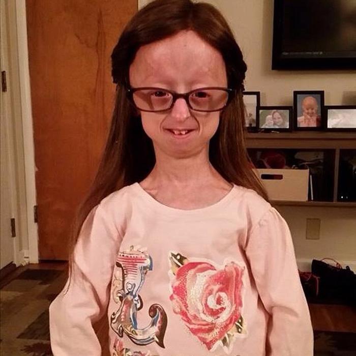 girl-rare-disease-progeria-powerlifter-friendship-lindsay-ratcliffe-david-douglas-10