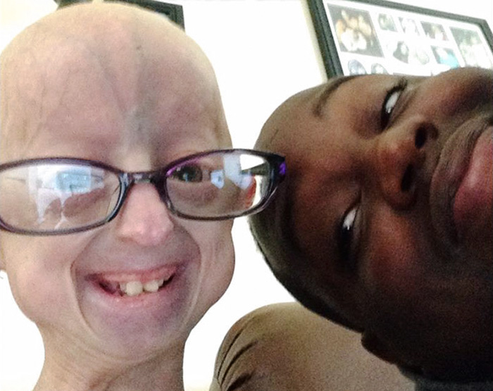girl-rare-disease-progeria-powerlifter-friendship-lindsay-ratcliffe-david-douglas-21