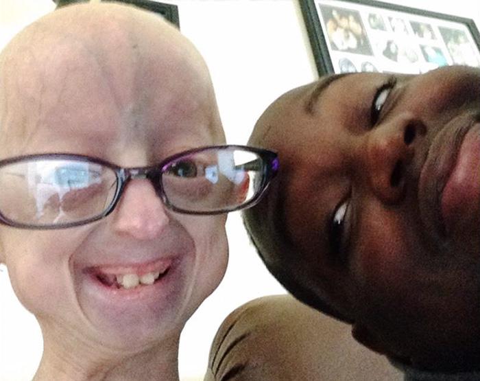 girl-rare-disease-progeria-powerlifter-friendship-lindsay-ratcliffe-david-douglas-21
