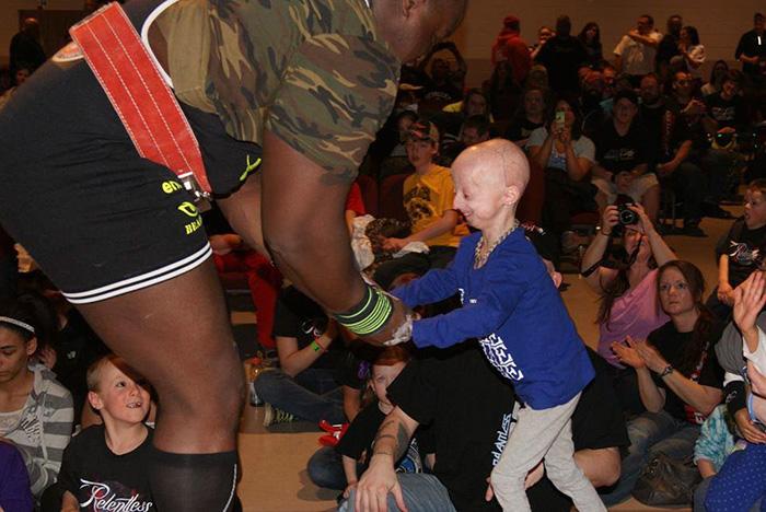 girl-rare-disease-progeria-powerlifter-friendship-lindsay-ratcliffe-david-douglas-3