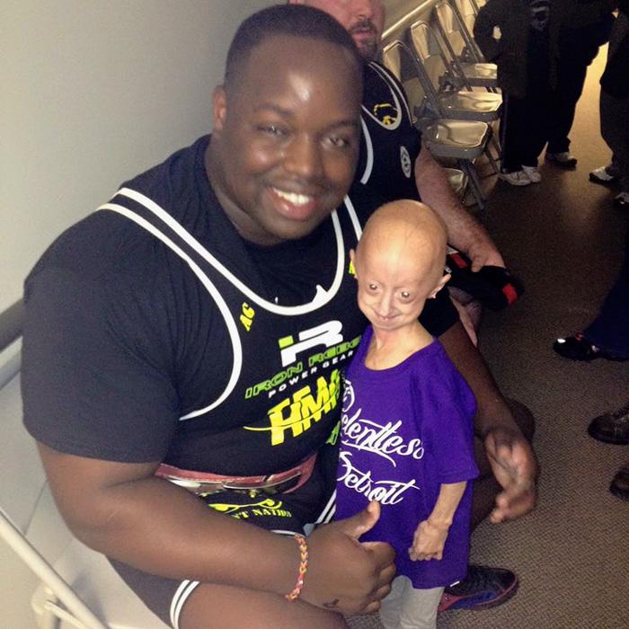girl-rare-disease-progeria-powerlifter-friendship-lindsay-ratcliffe-david-douglas-4