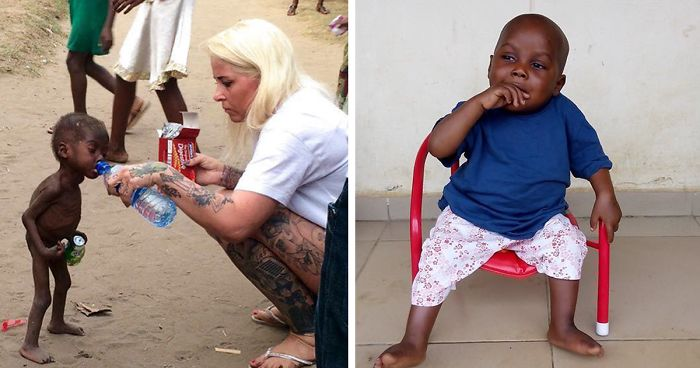 844cd2a718b 2-Year-Old 'Witch Child' Who Was Left To Die Makes Stunning Recovery ...