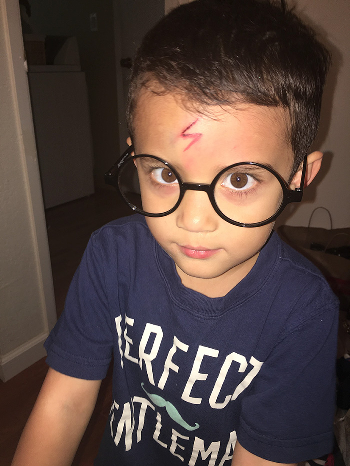 Mom Turns Crying Kid S Cut Into Harry Potter Lighting Bolt