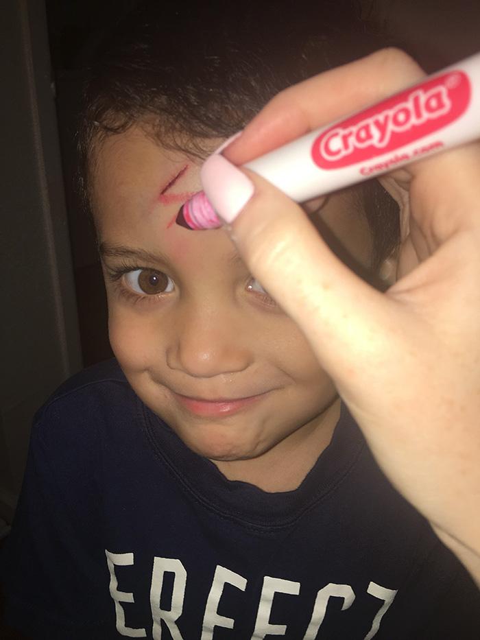mom-turns-kid-scar-into-harry-potter-lightning-sign-5