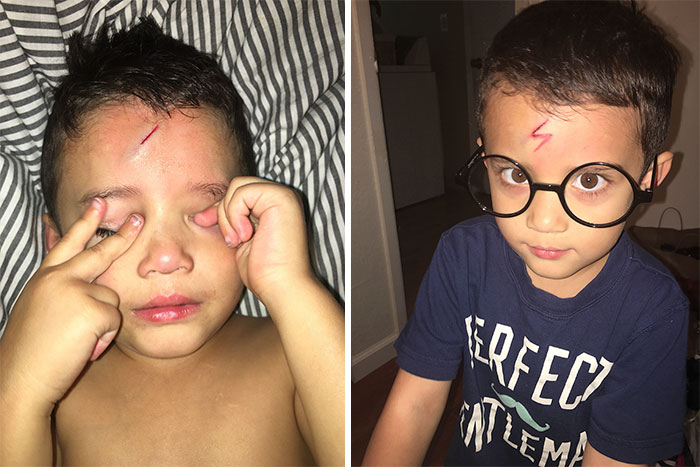 Mom Turns Crying Kid's Cut Into Harry Potter Lighting Bolt, Makes Him Happy Again