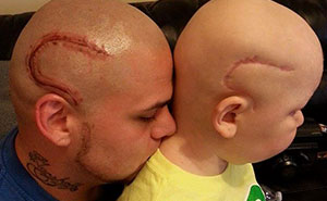 Dad Tattoos His Son's Cancer Scar On His Own Head To Boost Son's Self-Confidence