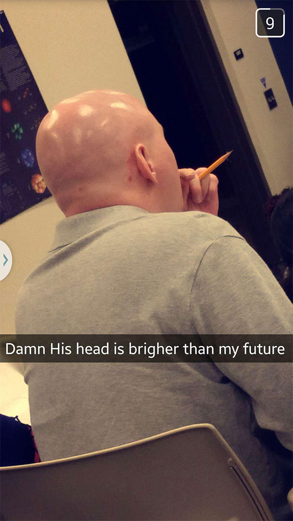 Damn His Head Is Brighter Than My Future