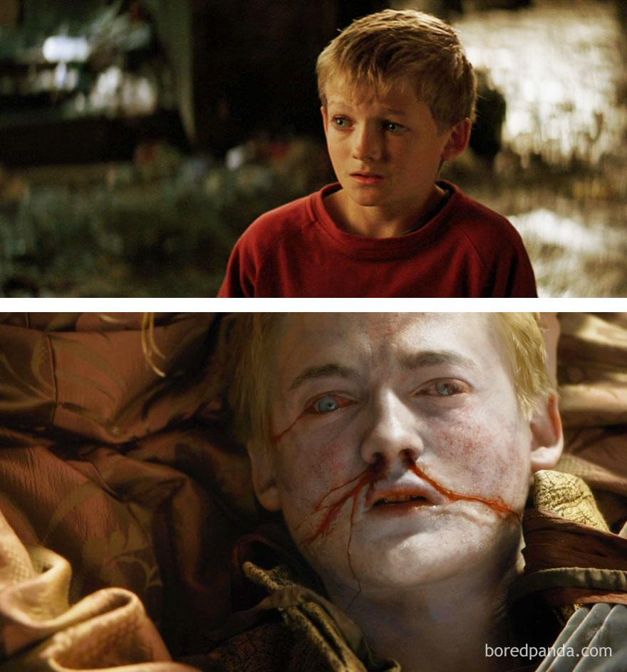 قبل وبعد مسلسل Game of Thrones - جوفري براثيون