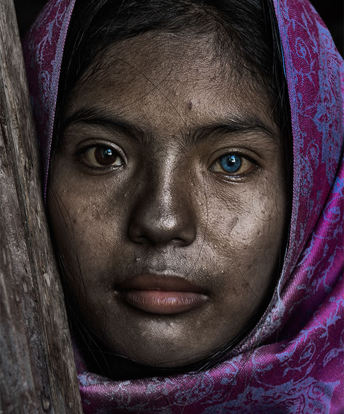 Sapa Is A 'Cham' Girl In Ninh Thuan Who Has Two Different Colored Eyes
