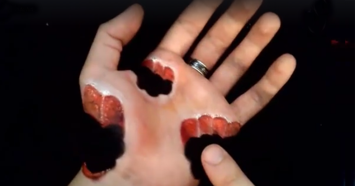 19,Year,Old French Artist Destroys His Hand With Body Art