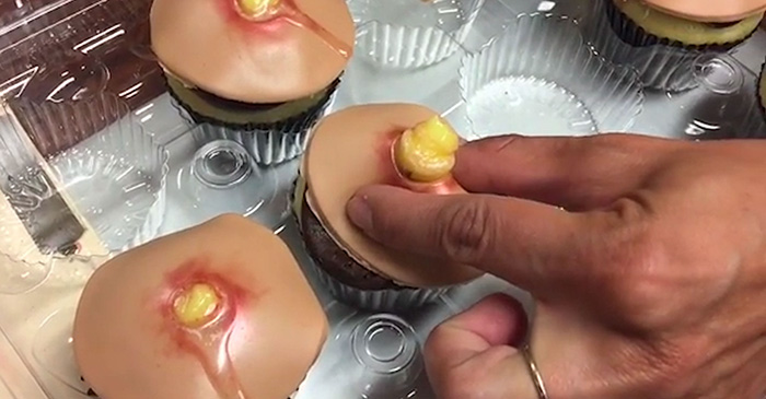 pimple-cupcakes-dr-pimple-popper-blessed-by-baking-4