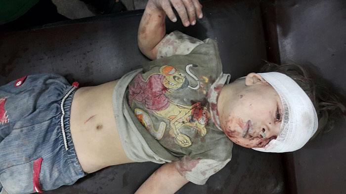alleppo-boy-air-strike-syria-omran-daqneesh-1