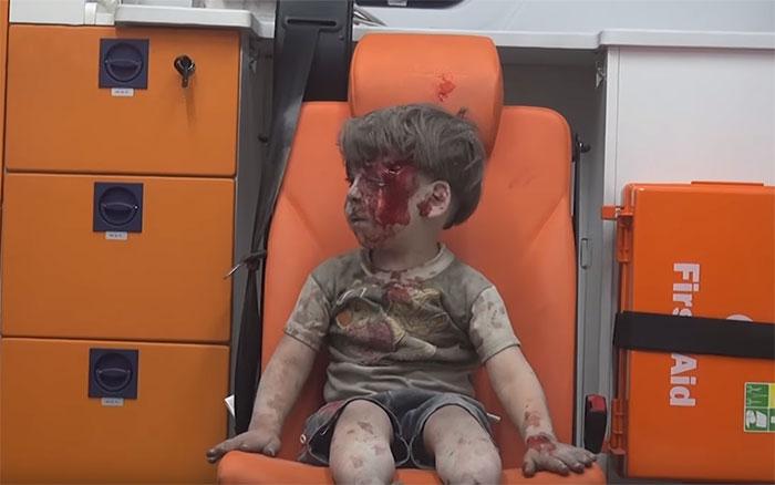 alleppo-boy-air-strike-syria-omran-daqneesh-5