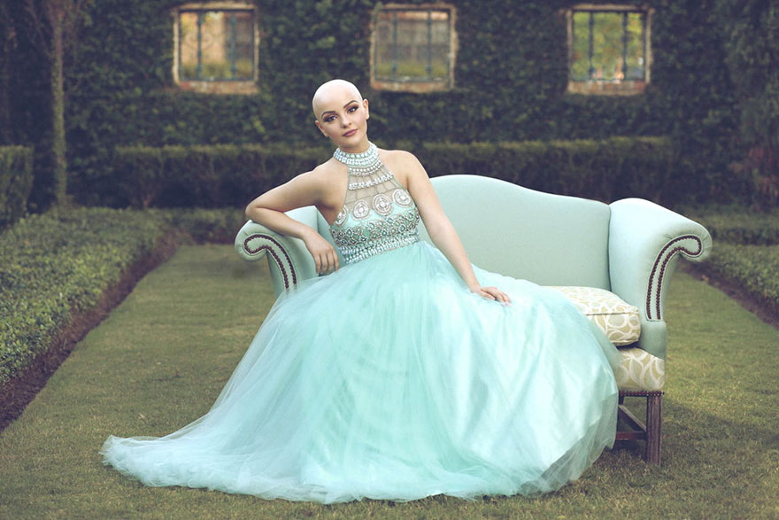 bald-teen-cancer-photoshoot-andrea-sierra-salazar-gerardo-garmendia-37