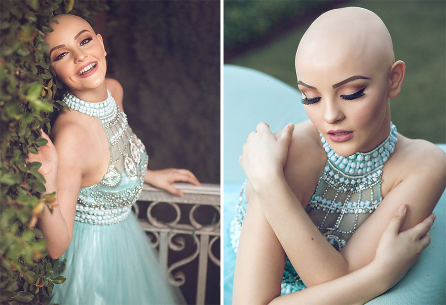 bald-teen-cancer-photoshoot-andrea-sierra-salazar-gerardo-garmendia-41