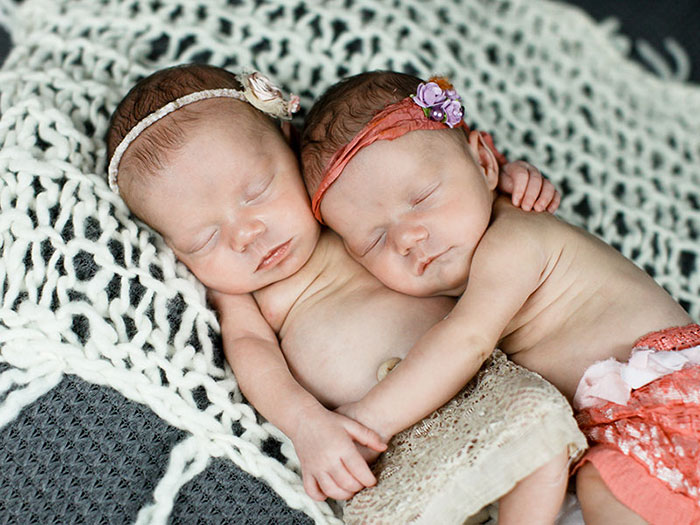 identical-twins-born-holding-hands-jenna-jillian-sarah-thistlethwaite-8