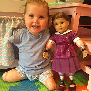 2-Year-Old Girl Gets Quadruple Amputee Doll That Looks Just Like Her