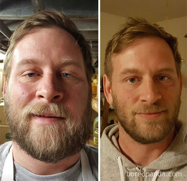 131 Before And After Pics Show What Happens When You Stop Drinking