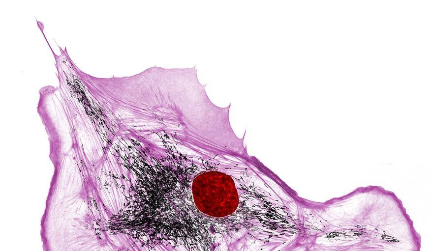 Actin, Mitochondria And Dna In A Bovine Pulmonary Artery Endothelial Cell