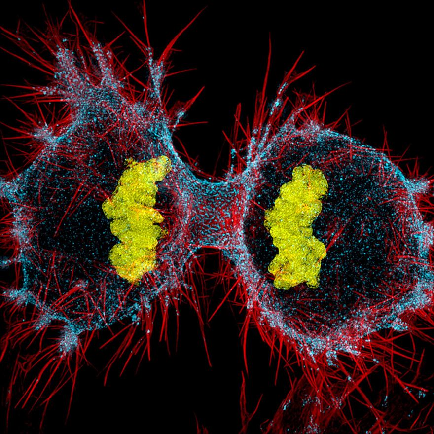 Twelfth Place. Human Hela Cell Undergoing Cell Division