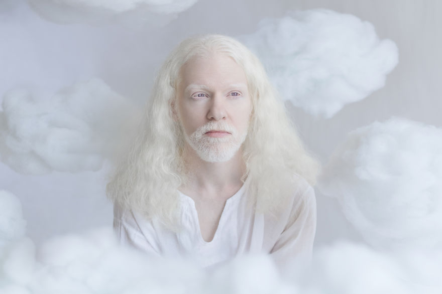 Photos Beauty Of Albinos by Yulia Taits #art people