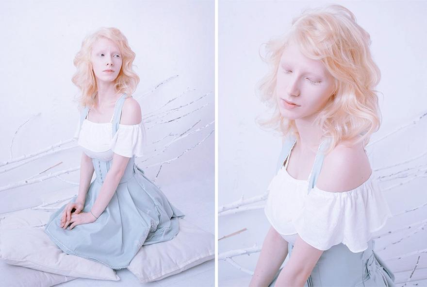 Albino Girl Bonn