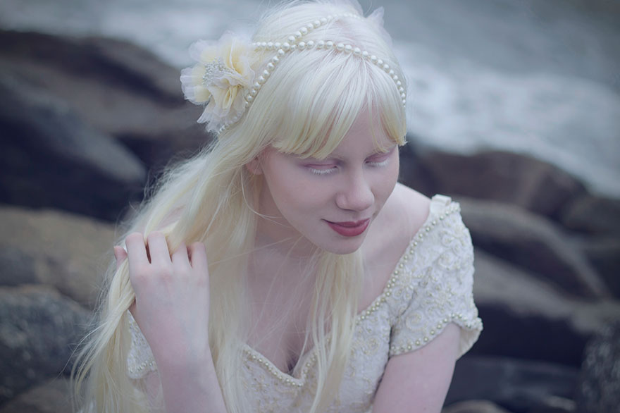Albino Girl By The Sea