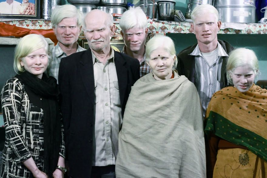 The World's Biggest Albino Family
