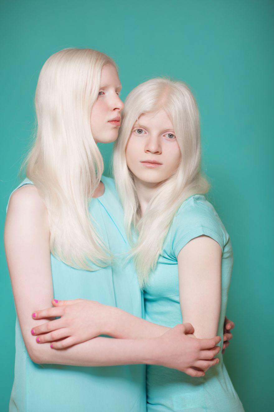 Pure Beauty Of Albino Kids