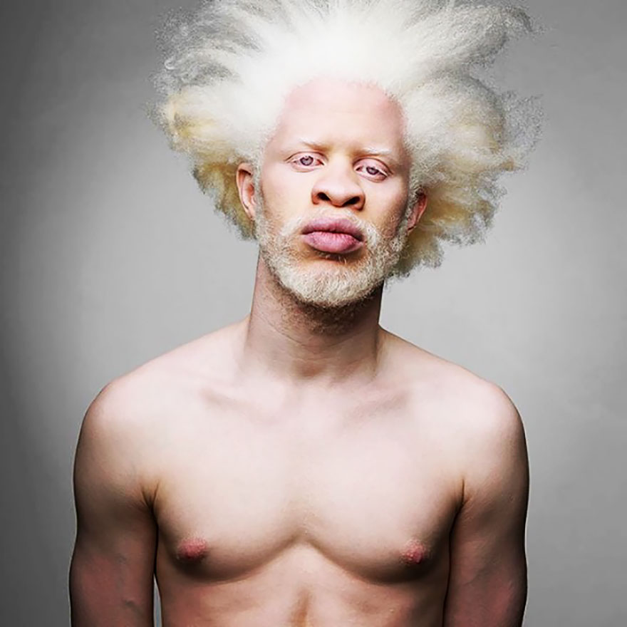 15+ Albino People Who'll Mesmerize You With Their ...