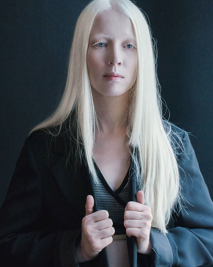 from Darian naked albino woman girl