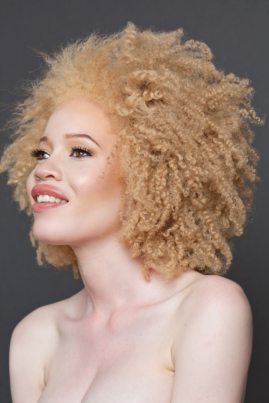 black naked albino girls