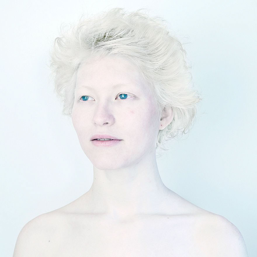 people with albinism Albinism is a group of hereditary conditions that affect how the body produces or distributes pigment (the material that produces color) people with albinism h.