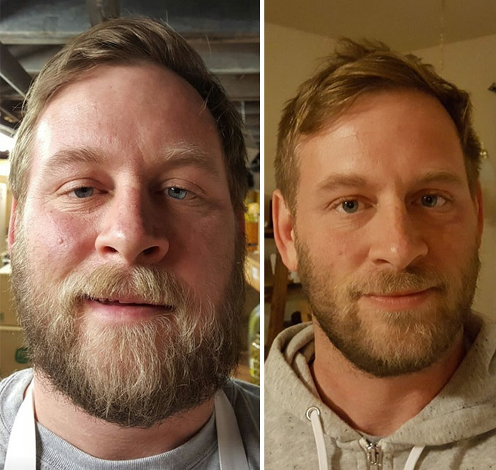 10+ Before-And-After Pics Show What Happens When You Stop Drinking