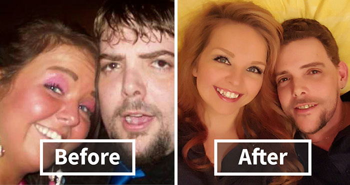 10+ Before-And-After Pics Show What Happens When You Stop Drinking (Part 2)