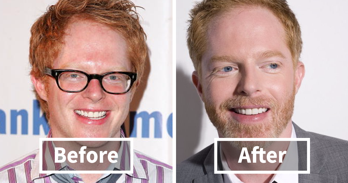Better off facial hair intolerable