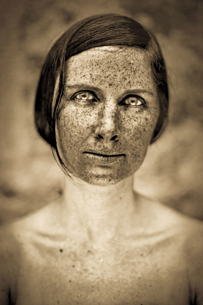 15 Freckled People Who Ll Hypnotize You With Their Unique