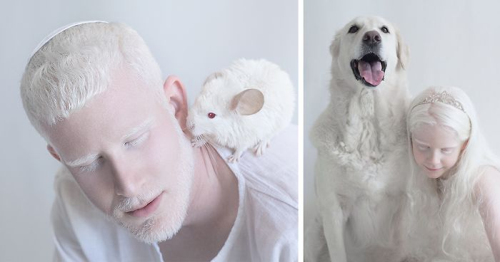 I Captured The Hypnotizing Beauty Of Albino People