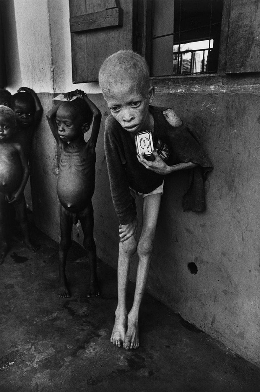 Albino Boy, Biafra, Don Mccullin, 1969