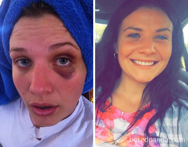 24 Stunning Before & After Transformations Of People Who Quit Drugs
