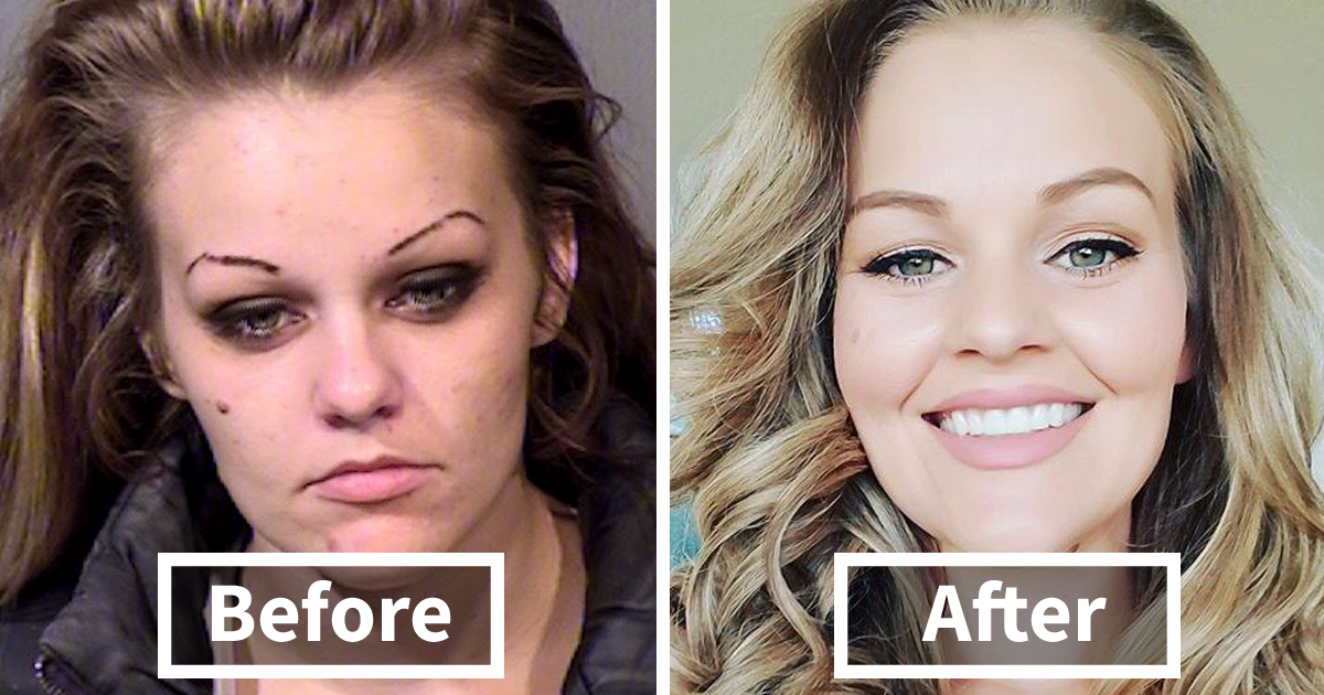 10 Stunning Before Amp After Transformations Of People Who